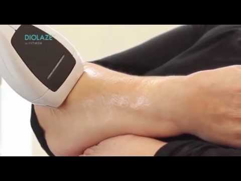 diolaze laser hair removal reviews