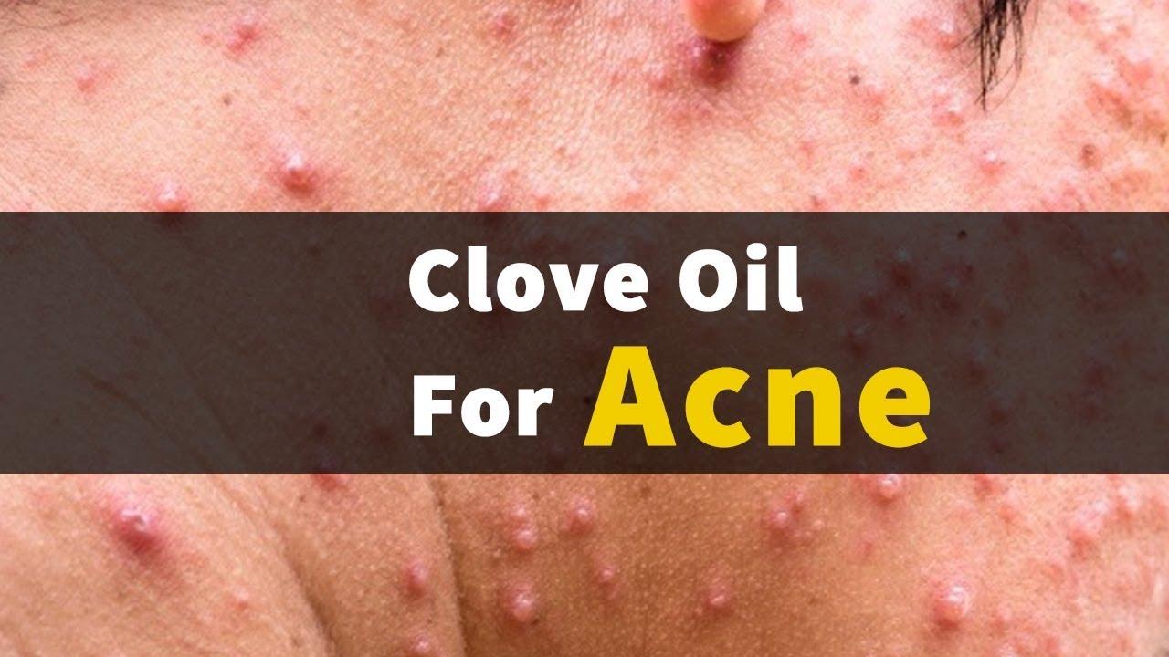 clove oil for acne reviews